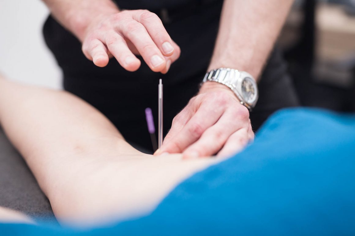 Dry Needling – What is it and what does it do?